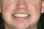 Figure 13  Posttreatment full smile view.
