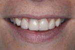 Fig 13. Post-treatment smile at the 1-month clinical follow-up.