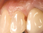 Figure 1  At the hygiene visit, a proximal gingival carious lesion was detected on a maxillary lateral incisor.