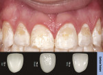 Figure 1  A 17-year-old boy presented with significant discoloration on all of his teeth, in particular the anterior teeth. Using the Chair Side Shade Selection Guide, the patient's surface texture was checked as part of the custom shading process.