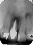 Fig 1. Radiographic image of failing tooth No. 9.