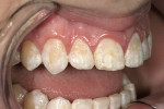 Figure 2  A 17-year-old boy presented with significant discoloration on all of his teeth, in particular the anterior teeth. Using the Chair Side Shade Selection Guide, the patient's surface texture was checked as part of the custom shading process.