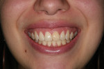 Fig 1. Existing condition, high smile line, thin biotype, and tapered tooth form.