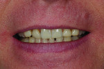 Fig 2. Smile prior to treatment.