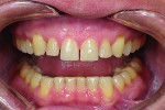 Fig 9. After orthodontic treatment.