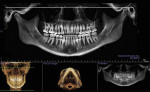 Fig 4. Reconstructed panoramic x-ray from CBCT scan. The 3D DICOM data were positioned with the midsagittal plane defined by midline structures and perpendicular to the Frankfort plane. The focal trough was set to include the TMJs in CO and the dentoalveolar trough with accurate positions of the teeth and roots. Note the difference in the vertical positioning of the TMJ complex and auditory canals from right to left. The white line is horizontal and perpendicular to the midsagittal plane and is located at the top of the left glenoid fossa.