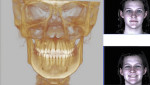 Fig 2 and Fig 3. The 3D CBCT scan in CO utilizing a stereophotogrammetry system with 1.5-millisecond capture with 1-minute processing time and a resolution of 0.1 mm across the whole facial surface.