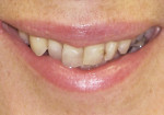 Figure 1  Preoperative photographs. The patient felt self-conscious about her smile and wanted them straighter and whiter. Note the anterior crowding and very prominent maxillary right canine.