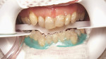Figure 16  The patient's lower teeth were isolated and whitened in three rounds of 20-minute sessions using a 25% hydrogen peroxide gel without a light source. She was then given a custom lower whitening tray to be worn at night for 2 weeks wit