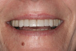 Fig 8. Post-treatment close-up smile.
