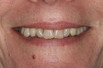 Fig 7. Pretreatment close-up smile.