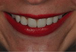 Fig 6. Post-treatment smile showing a harmonious esthetic result.