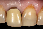 (2.) Intraoral view of tooth No. 8 with exposure of the restorative margin of the metal-ceramic crown. The color difference of the tooth structure between the two central incisors was evident.