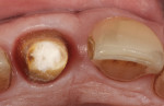 (8.) The sodium-perborate mixture was placed into the pulp chamber of the endodontically treated tooth following gutta-percha removal, and a cotton plug was placed over the mixture.