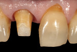 (10.) After a fiber-reinforced foundation restoration system was used to build-up the missing coronal portion of the tooth and the core build-up was cured and secured, the tooth was prepared again with an angular shoulder finish line.