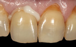 (14.) After final shade correction and patient approval, the final crown was cemented with a dual-cured resin cement. The internal zirconia surface was cleaned prior to primer application.