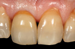 (16.) Intraoral view of the completed final crown No. 8, 1 week after definitive cementation. Note the positive soft-tissue response to the well-adapted crown.