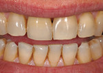 (17.) Extraoral frontal smile view of the definitive crown restoration.