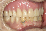 Figure 16  Complete denture seated firmly.