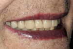 Figure 18  Postoperative smile.