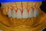 Fig 2. Wax-up of full contour crowns and veneer copings.