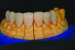Fig 5. Crowns Nos. 5 and 12 and veneers Nos. 4 and 7-10 cut back minimally on the incisal one-third.