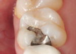 Figure 1  Failing amalgam in tooth No. 3.