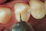 Figure 8  Minor marginal adjustment and contouring was accomplished using an interproximal finishing diamond.