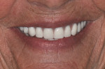 Fig 18. The patient's smile post-treatment.