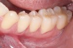 Fig 17. Buccal view of the completed inlays. Note the completely seamless transition from inlays to the tooth and the intact gingival tissue health.