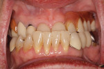 (1.) Patient's preoperative Class III malocclusion.