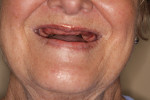 (3.) Preoperative residual ridge display on smiling without prosthesis.