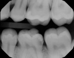 (1.) Initial radiograph. Deep distal caries extending near crest of bone.