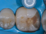 (5.) Immediate dentin sealing.