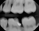 (7.) Completed margin elevation with perfect marginal seal. Mesial caries treated separately at cementation appointment. For an indirect restoration, the final impression will be taken now.
