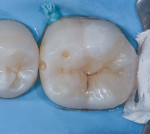 (9.) Cementation of inlay, access of mesial caries. Mesial lesion is restored separately to conserve valuable intact tooth structure.