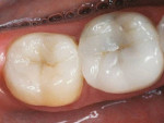 (13.) These Empress inlay and Empress onlay restorations are 17 years old. Replacing occlusal and interproximal enamel, they are bonded to stress reduced bio-bases consisting of immediate dentin sealing, resin coating, and dentin replacement.