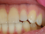 (6.) Photographs at follow up visit: all teeth asymptomatic.