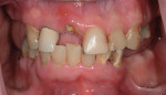 (1.) Pretreatment retracted view of the patient's failing dentition.