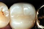 Figure 9: Occlusal view of postoperative result after injection molding of the interproximal portion.