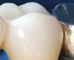 Figure 10  Facial view of the postoperative result. Well-placed, well-polished Filtek Supreme paste composites have demonstrated the ability to wear at that same rate as human enamel.