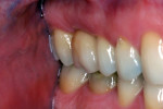 Another case with the Atlantis CustomBase solution in the upper first molar and the final restoration in place.