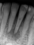 (1.) Typical radiographic example of internal root resorption.