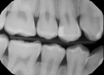 (1.) Baseline bitewing radiograph.