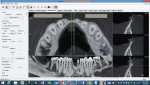 (3.) InVivo case planning utilizing CBCT imaging (Image courtesy of Dr. Eduardo Gonzalez.).