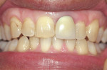 Figure 1  Preoperative view of defective crown on tooth No. 9 with discolored gingival area due to porcelain-metal crown.