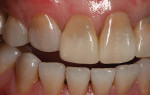 (6.) PMMA winged provisional in place to help develop interproximal papilla and close gingival embrasure prior to periodontal graft procedure.