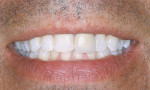 Figure 2  View of teeth after 2 weeks of bleaching.