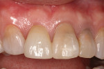 (11.) 2 weeks post-op after gingival graft surgery was performed.