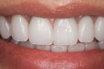 (17.) Final smile 2 weeks after cementation of lithium disilicate restorations.